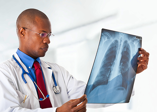 pulmonologist reviewing chest x-ray